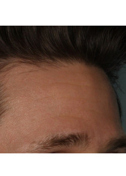 Botox/Xeomin for the Forehead