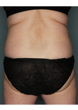 CoolSculpting to Flanks and Bra Fat
