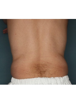 CoolSculpting to Flanks