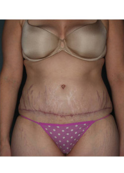 Abdominoplasty with Liposuction in Flanks