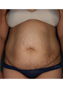 Abdominoplasty with Liposuction in Flanks and Upper Abdomen