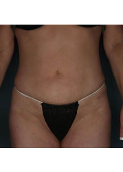 Liposuction to Abdomen and Hips